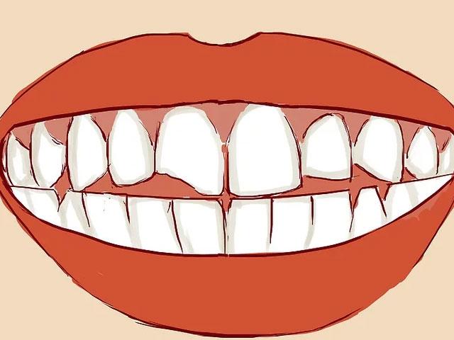 بررسی دندان ها برای آگاهی از شکستگی دندان