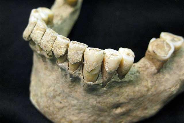 پلاک دندان و بیماری لثه