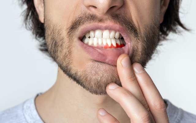 چگونه بفهمیم عفونت دندان داریم؟