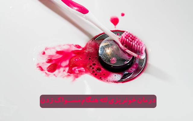 علت خونریزی لثه هنگام مسواک زدن و درمان