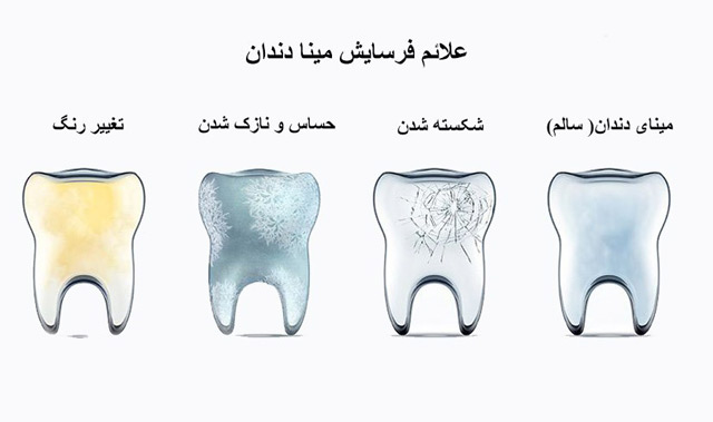علائم فرسایش مینای دندان