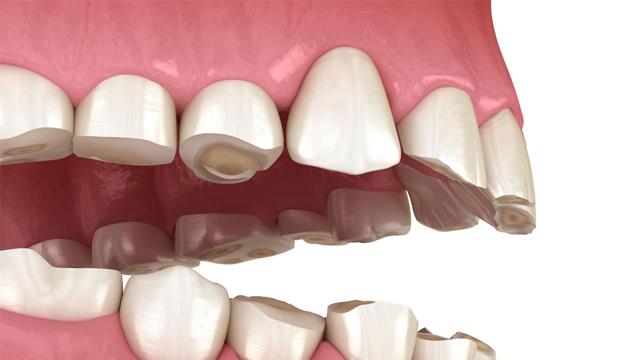 دندان قروچه بعلت دندان های ناهموار