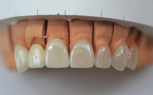 آیا روکش دندان های شما را خراب میکند؟